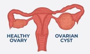 ovarian cyst diagram