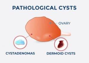 pathological cysts