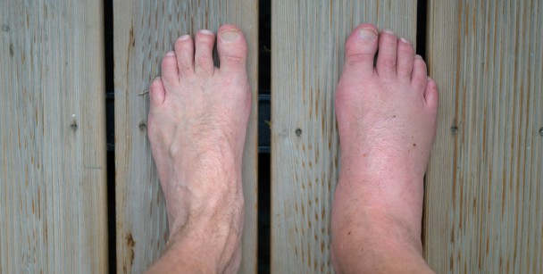 foot swell after stepping on nail