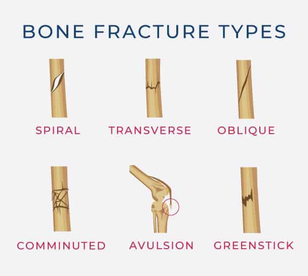 broken bones types