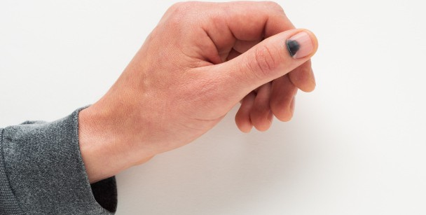 Hand and wrist injuries:  Nail Bed Injury
